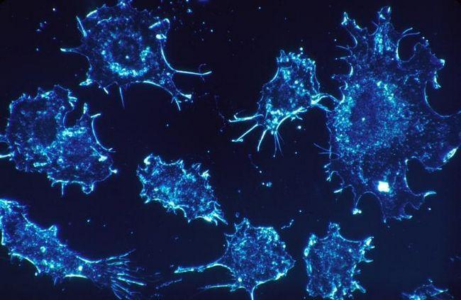 boală în stadiul cancerului