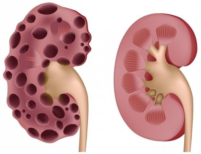 Acidoza renală