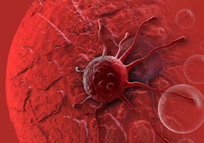 Ce este adenocarcinomul?