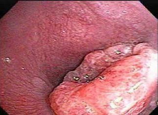 adenocarcinom diferențiat