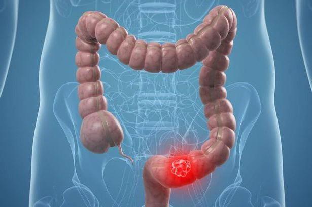 adenocarcinom intestinal foarte diferențiat