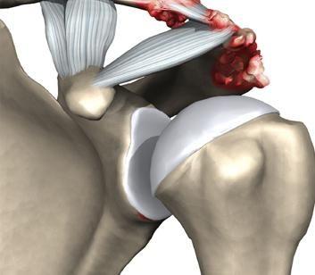 articulația acromioclaviculară