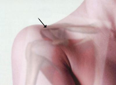 articulația de mișcare acromioclaviculară