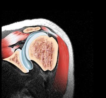 dislocarea unei articulații acromioclaviculare