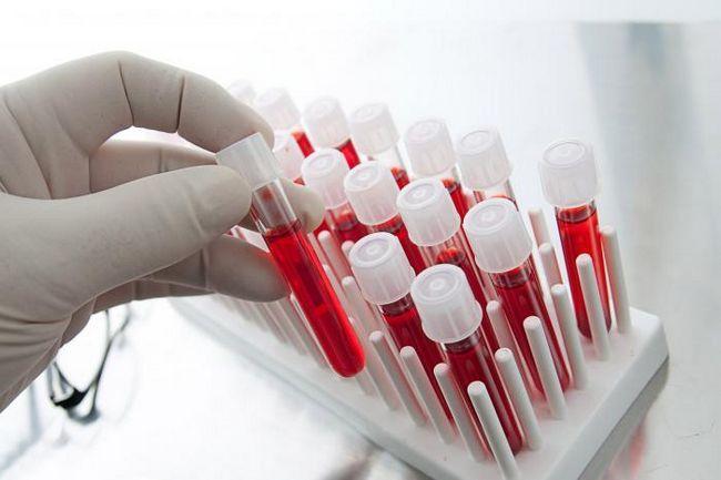 test de sânge pentru cancer