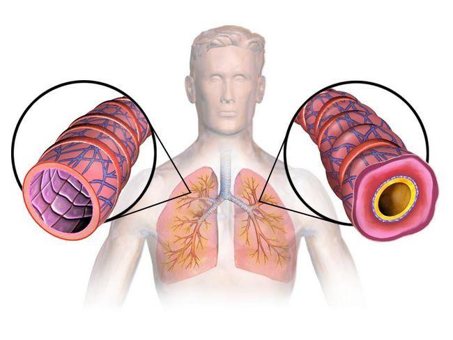 Astm: simptome, cauze, diagnostic și tratament