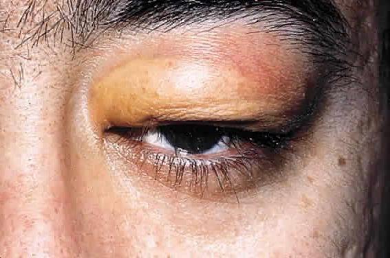 Simptome de boală ergică