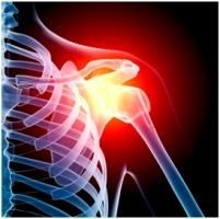 osteoartrita articulației de gradul întâi al articulației umărului