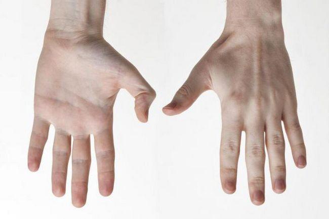 части руки