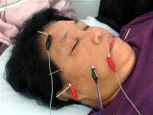 acupunctura cu nevrită a nervului facial