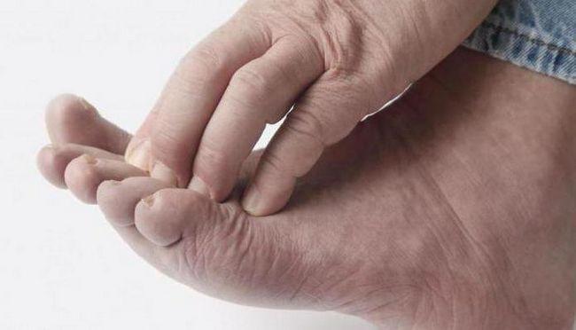 degetele de la picioare sunt mâncărime
