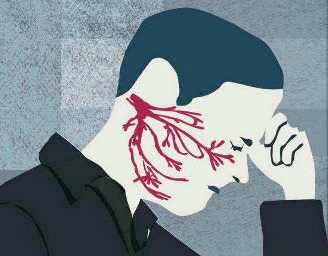 tratamentul nervului trigeminal la reviziile la domiciliu