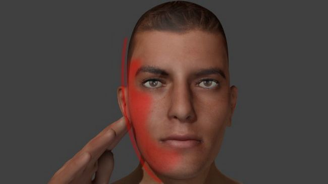 tratamentul nervului trigeminal al feței la domiciliu