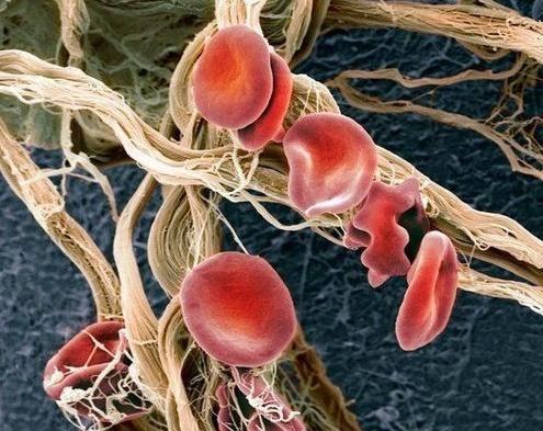Elemente roșii sanguine crescute