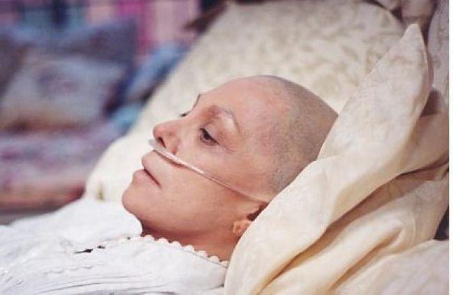 oncologie de scenă
