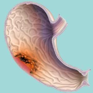 Forme de cancer de stomac