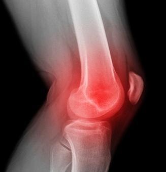 artroza articulației genunchiului ce trebuie făcută