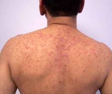 dermatită exfoliativă