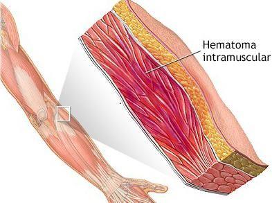 каковы причины и симптомы гематомы
