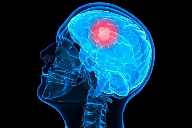 Glioblastomul creierului Foto
