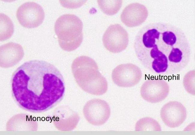 granulocitele sunt neutrofile