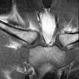 articulația sternoclaviculară