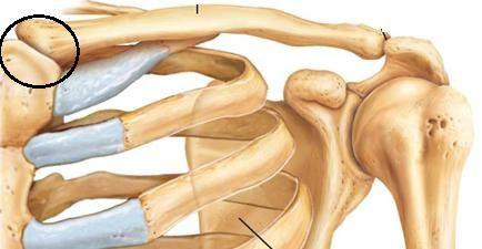 articulația sternoclaviculară în formă