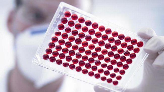 hct în testul de sânge este normal la bărbați