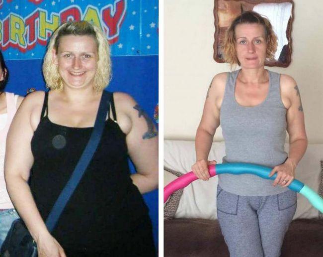 Înainte și după hulauchup de torsiune