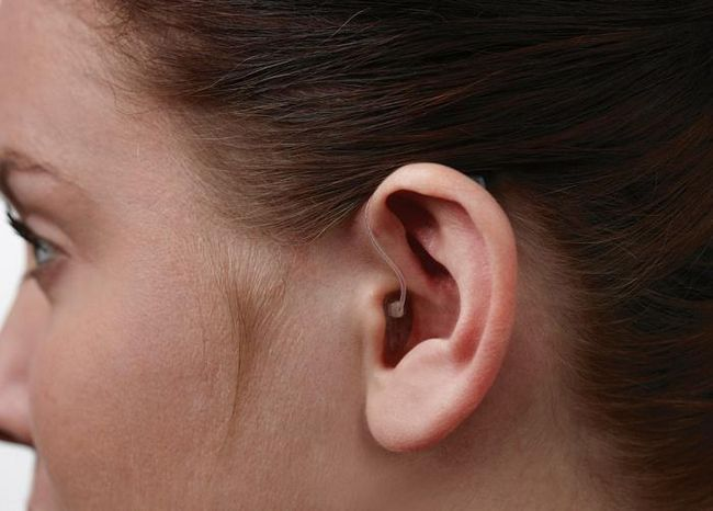 Tipuri de afectare a auzului