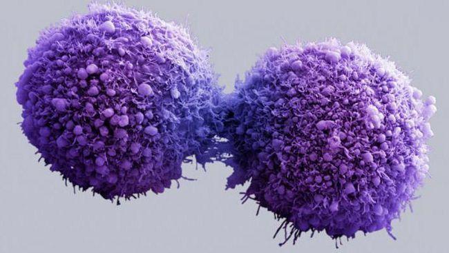 de ce apare cancerul