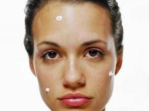 geluri pentru acnee