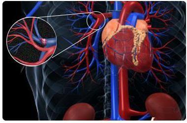 embolismul arterei