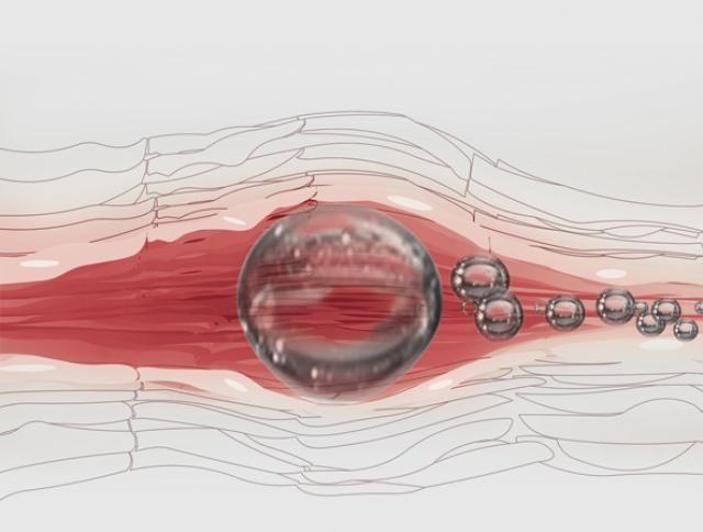 embolism vascular