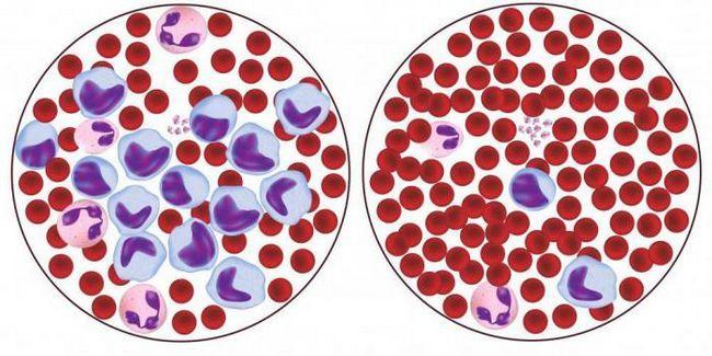 Eritrocitele din sânge sunt reduse