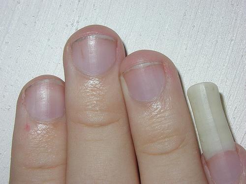 de ce unghii pe degetul mic