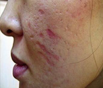 cum să scapi de cicatrici de acnee