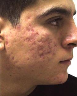 cicatrici de acnee cum sa scapi