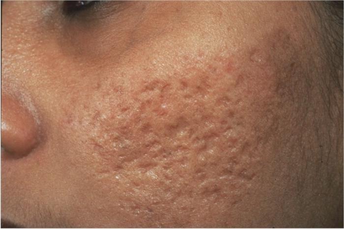 cum să elimini cicatrici după acnee