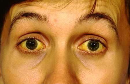 Analiza genetică a sindromului gilber