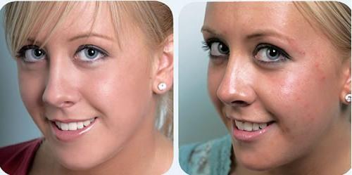 Cum sa scapi de pete dupa acnee