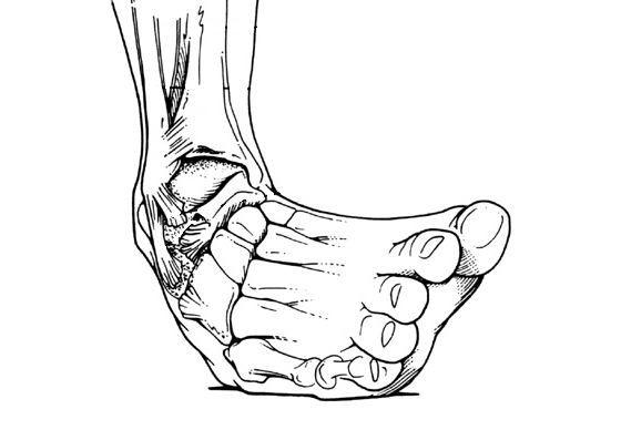 как лечить вывих ноги в домашних условиях