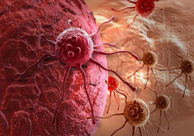 analiza pentru prezența celulelor canceroase în organism