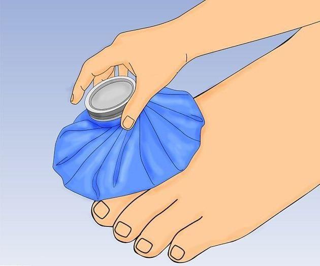 Cum să distingeți o fractură de un prejudiciu de la picior