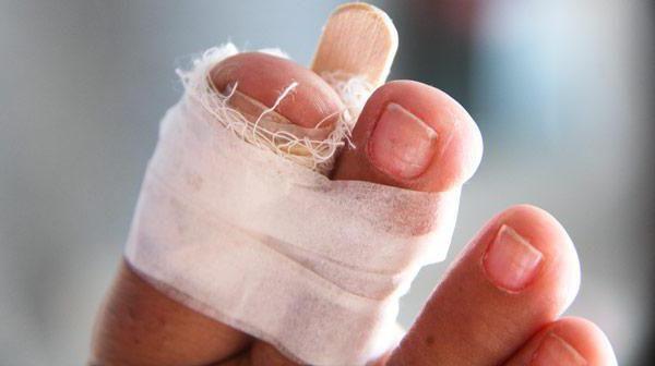 Cum puteți distinge fractura de o mână lovită