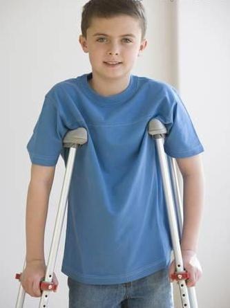 perthes boala la copii de tratament
