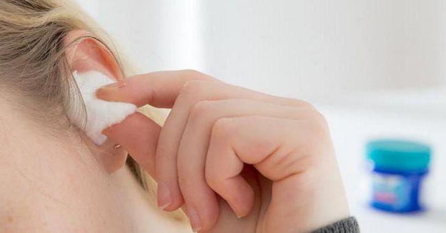 Cât de des îmi pot spăla urechile cu peroxid de hidrogen?