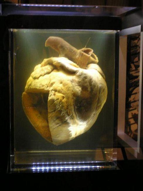 sistemul circulator al cărui organ este compus