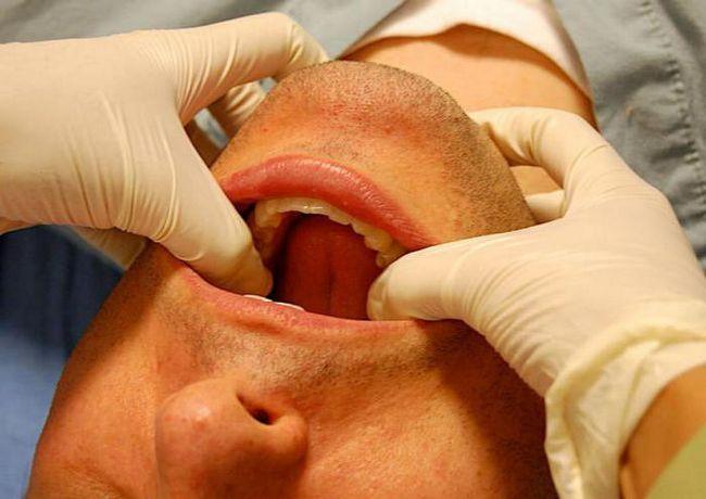 operație maxilo-facială la Moscova