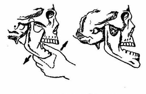 dislocarea maxilarului
